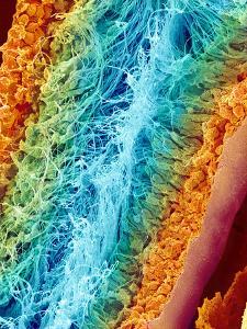 Sperm Production, SEM by Susumu Nishinaga