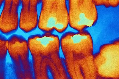Teeth with Fillings, X-ray-PASIEKA-Photographic Print