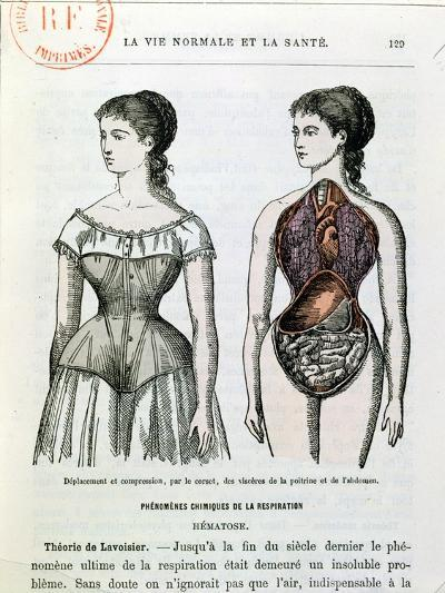 """The Harmful Effects of the Corset, Illustration from """"La Vie Normale Et La Sante""""--Giclee Print"""