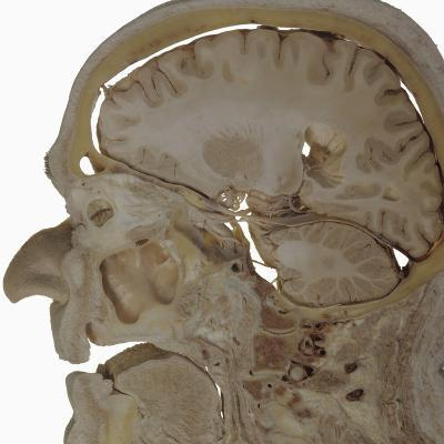 The Human Head and Brain in Sagittal Section Revealing the Position of the Brain, Brainstem-Ralph Hutchings-Photographic Print