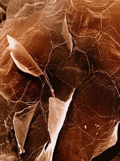 The Surface of Human Skin Epidermis-David Phillips-Photographic Print