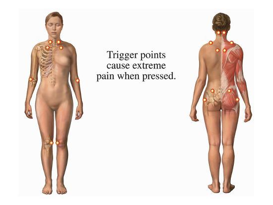 This Medical Exhibit Identifies the Trigger Points Associated with Fibromyalgia Syndrome (Fms)-Nucleus Medical Art-Giclee Print