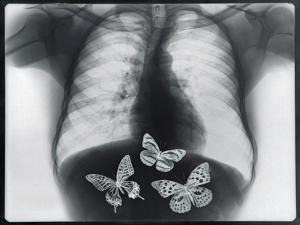 X-ray of butterflies in the stomach by Thom Lang