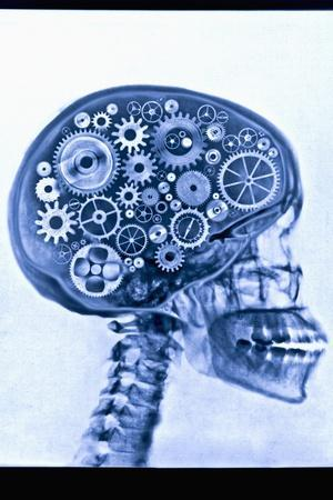 X-ray of skull with gears