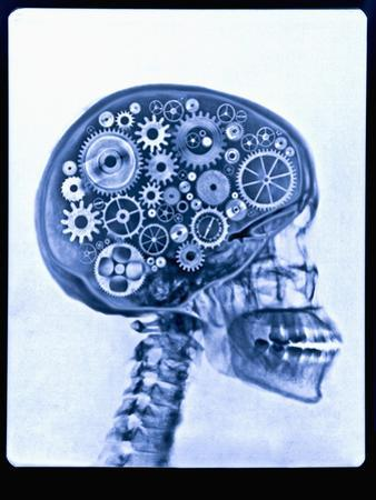 X-ray of skull with gears by Thom Lang