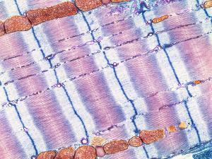 Cardiac Muscle, TEM by Thomas Deerinck