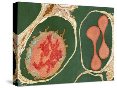 Lung Alveoli And Blood Cells, TEM
