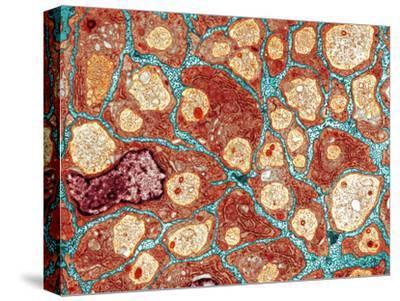 Myelination of Nerve Fibres, TEM