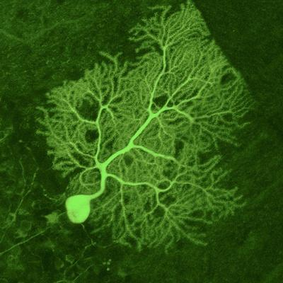 Purkinje Nerve Cell, Light Micrograph