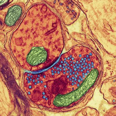 Synapse Nerve Junction, TEM