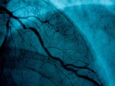 Images of Coronary Arteries on a Screen at a Cardiac Lab