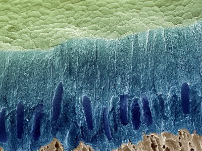Tooth Enamel Formation, SEM-Steve Gschmeissner-Photographic Print