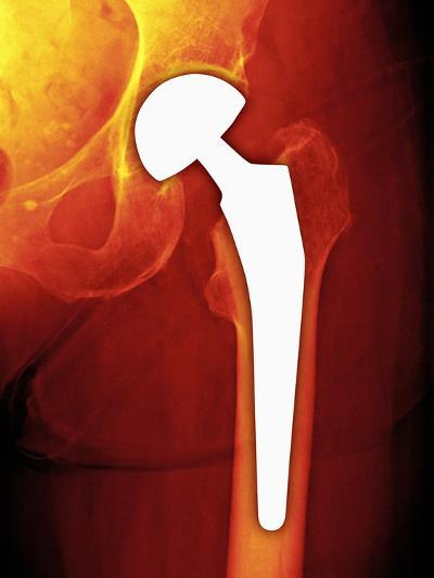 Total Hip Replacement, X-ray-Miriam Maslo-Photographic Print