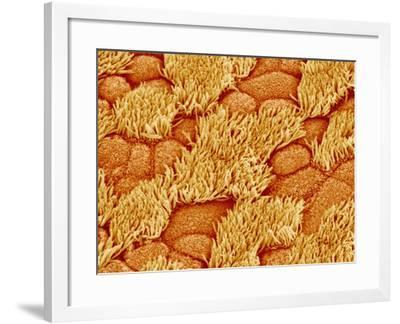 Trachea of a Rat-Micro Discovery-Framed Photographic Print
