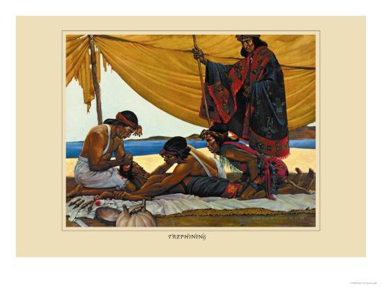 Trephining-Robert Thom-Art Print
