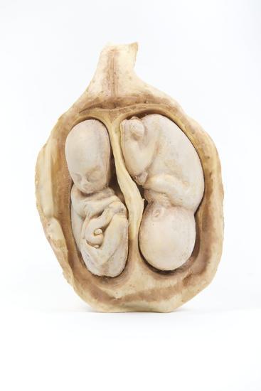 Twin Foetus Model-Gregory Davies-Photographic Print
