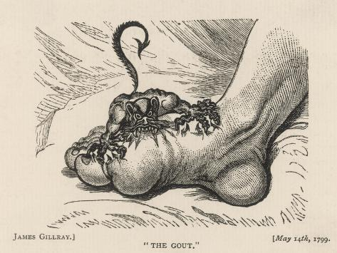 Little Devil Sinks His Teeth into the Swollen Foot of a Gout Sufferer-James Gillray-Stretched Canvas Print
