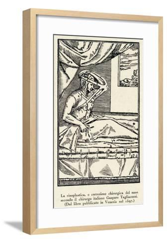 Rhinoplasty: Nose Correction--Framed Art Print