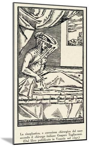Rhinoplasty: Nose Correction--Mounted Giclee Print