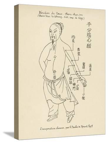 Acupuncture the Meridian of the Heart-Tchenn Tsiou Ta-tcheng-Stretched Canvas Print