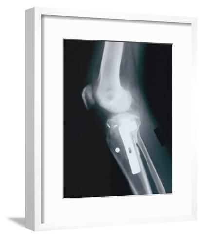 Knee Replacement--Framed Art Print