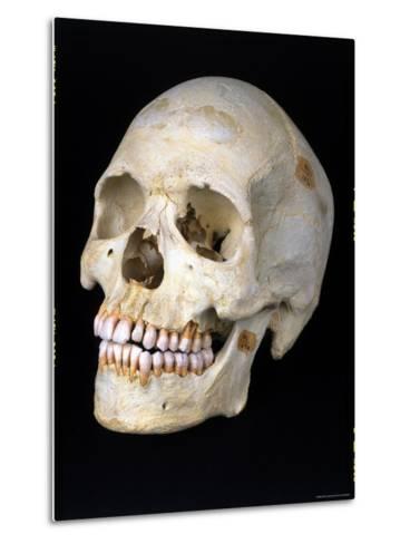 Modern Homo Sapiens Skull-Ted Thai-Metal Print