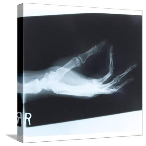 Black and White X-Ray Photograph of Hand of Person--Stretched Canvas Print