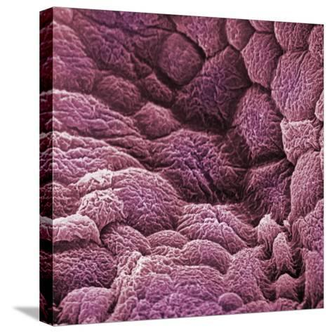 A Scanning Electron Micrograph of the Epithelial Cell Lining of the Bladder-David Phillips-Stretched Canvas Print