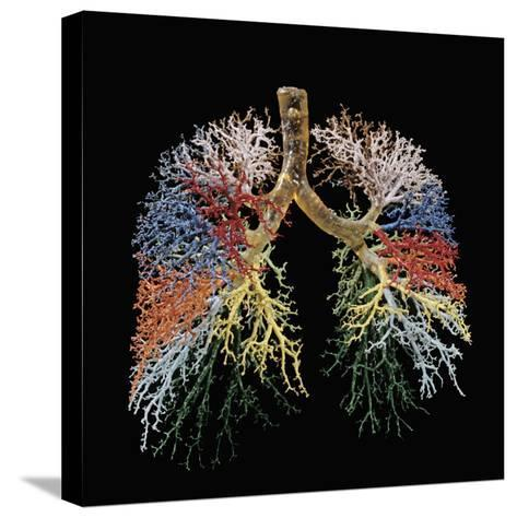 Resin Cast of Lungs, Bronchial Tree-Ralph Hutchings-Stretched Canvas Print