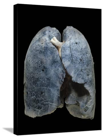 A Smoker's Damaged Lungs-Ralph Hutchings-Stretched Canvas Print
