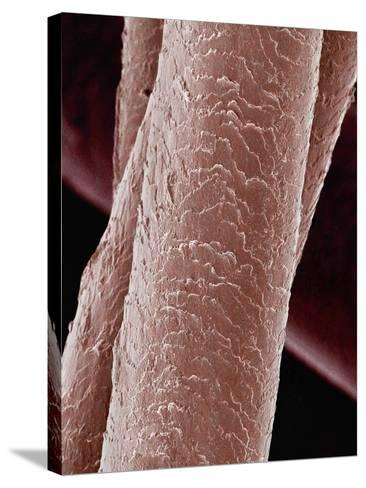 Human Hair-Micro Discovery-Stretched Canvas Print