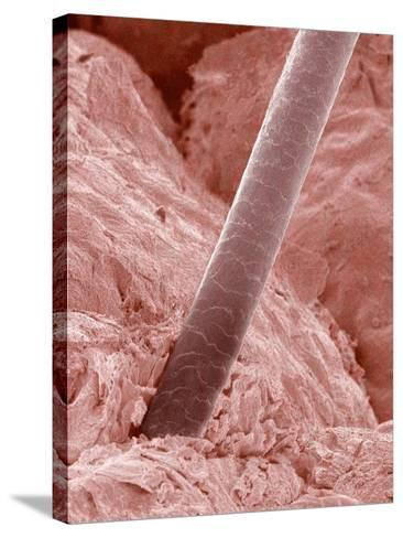 Human Hair and Skin-Micro Discovery-Stretched Canvas Print