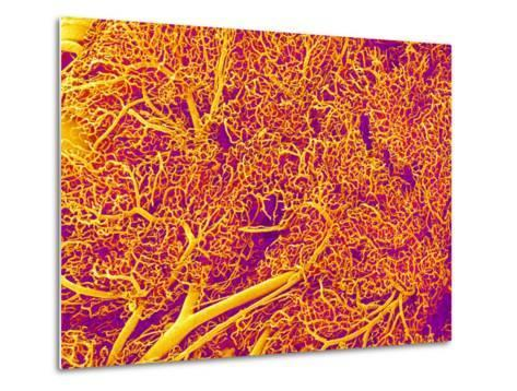 Blood Vessel Cast from Rat Pancreas-Micro Discovery-Metal Print