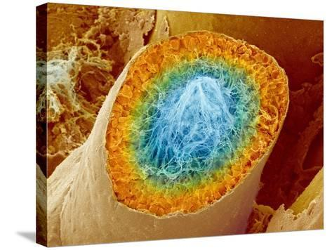 Sperm Production-Micro Discovery-Stretched Canvas Print