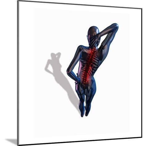Biomedical Illustration Showing a Person Suffering from Back Pain-Scott Camazine-Mounted Giclee Print