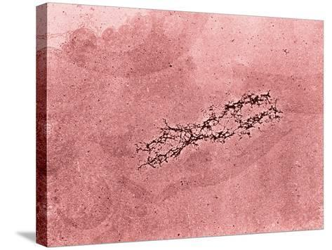 Filaments of DNA Spreading from the Core Protein of Isolated Chromosome-Donald Fawcett-Stretched Canvas Print