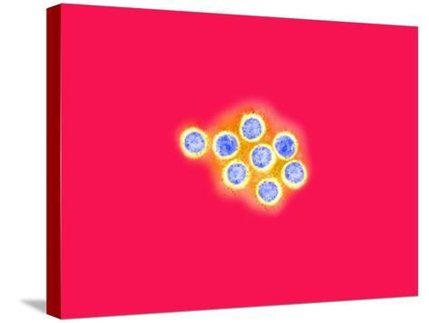 Herpes Simplex Viruses, Negative Stain, Tem X71,000-Gopal Murti-Stretched Canvas Print
