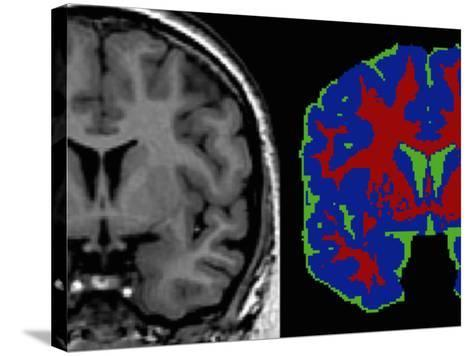 Brain Scans: in the Tissue Segmented Image-Arthur Toga-Stretched Canvas Print
