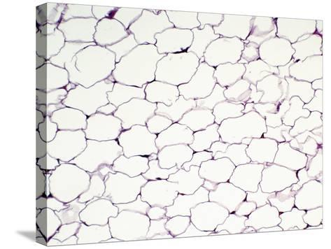 Human Adult Unilocular or White Fat Adipose Tissue, H&E Stain, LM X64-Gladden Willis-Stretched Canvas Print