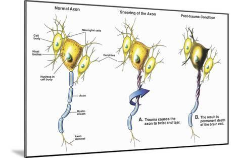 Illustration of Brain Neurons Subject to Axonal Shearing-Nucleus Medical Art-Mounted Giclee Print