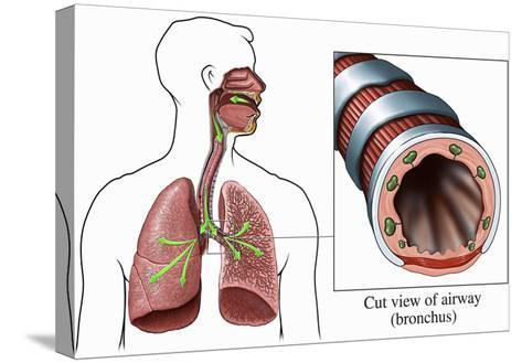 Illustration of the Airways to the Lungs, Including the Trachea and Bronchi-Nucleus Medical Art-Stretched Canvas Print