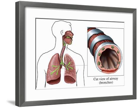 Illustration of the Airways to the Lungs, Including the Trachea and Bronchi-Nucleus Medical Art-Framed Art Print