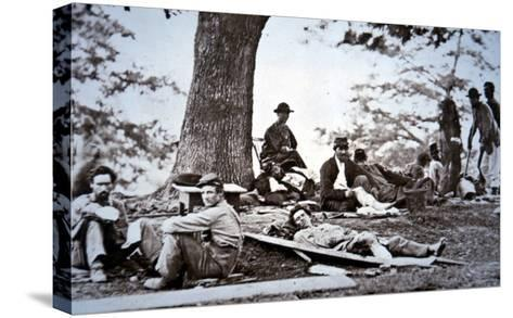 Union Army Amputees Recovering after Surgery (B/W Photo)-American Photographer-Stretched Canvas Print