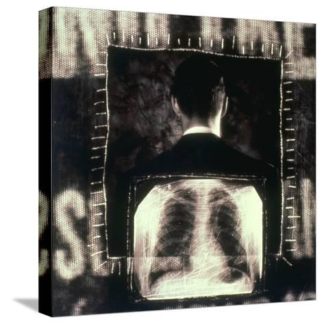 Man  And  X-ray--Stretched Canvas Print