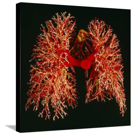 Resin Cast of Pulmonary Arteries And Bronchi-Martin Dohrn-Stretched Canvas Print