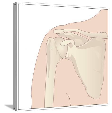 Shoulder Bones, Artwork-Peter Gardiner-Stretched Canvas Print