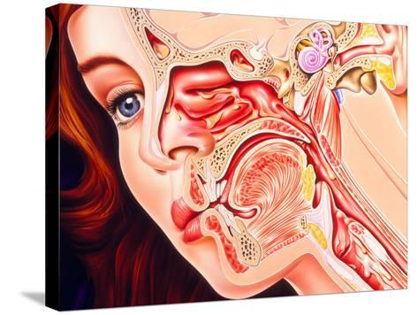 Artwork of Ear, Nose & Throat In a Cold Sufferer-John Bavosi-Stretched Canvas Print
