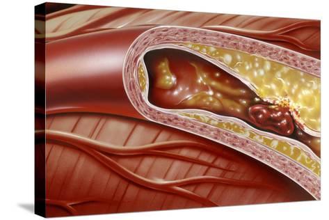 Blocked Coronary Artery, Artwork-John Bavosi-Stretched Canvas Print