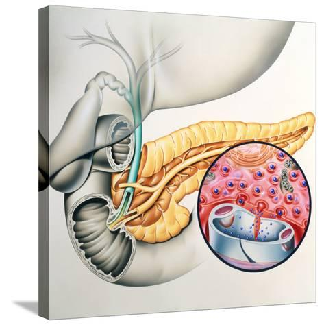 Artwork of the Pancreas Showing Insulin Production-John Bavosi-Stretched Canvas Print