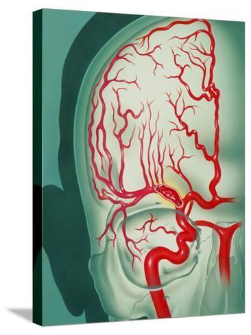 Cerebral Vascular Accident (CVA): Embolism Artwork-John Bavosi-Stretched Canvas Print